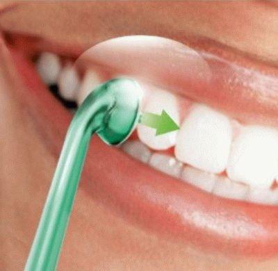 Чистка зубов и дёсен