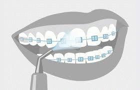 Воздействие ирригатора на зубы